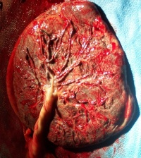 fba2cd05fc45ce91813c523805979006--human-placenta-medical-pictures
